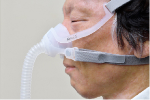 CPAP(シーパップ)治療